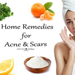 Effective Home Remedies For Acne & Scars