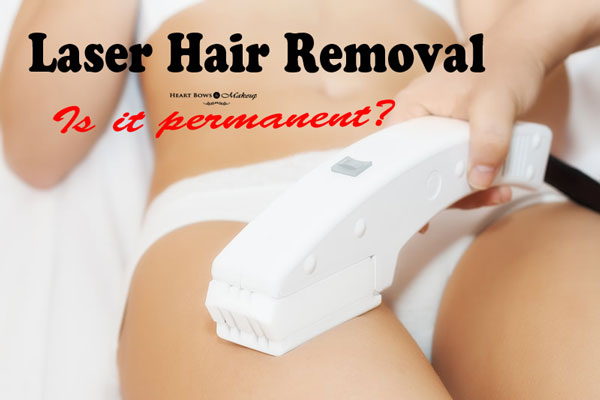 Is Laser Hair Removal Permanent? How effective is it?
