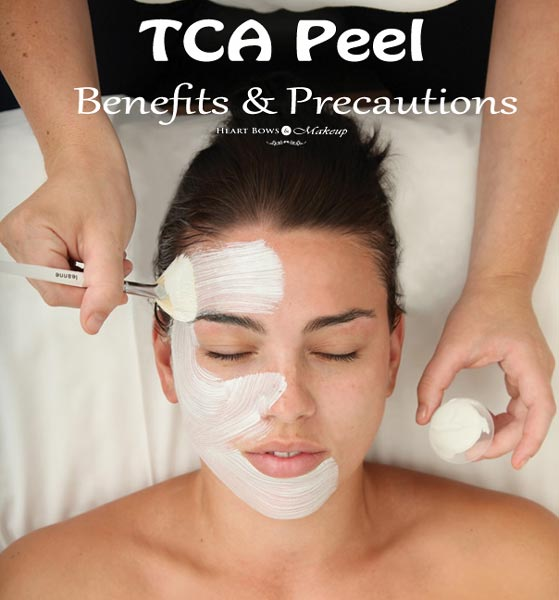 TCA Chemical Peel Benefits & Precautions