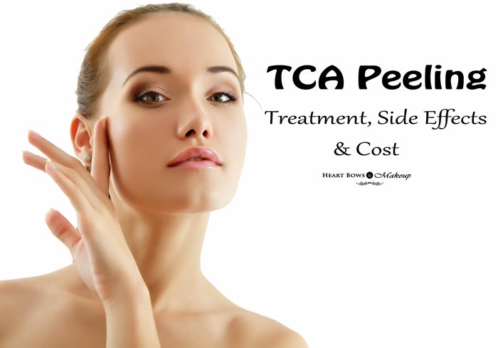 TCA Peeling Treatment Technique Side Effects & Cost India
