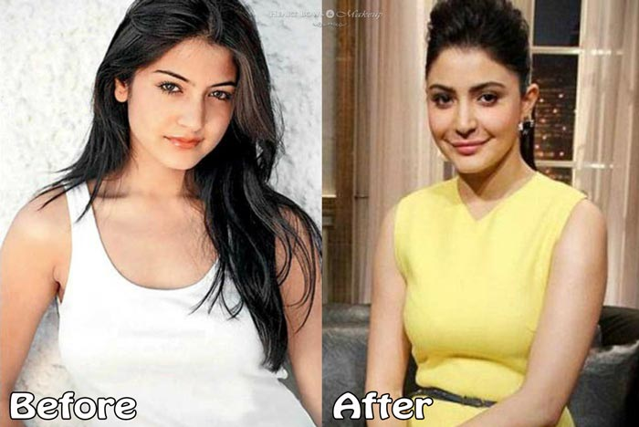Bollywood Celebrities Plastic Surgery Disaster Anushka Sharma Before After Pictures Lip Enhancement Nose Boob Job