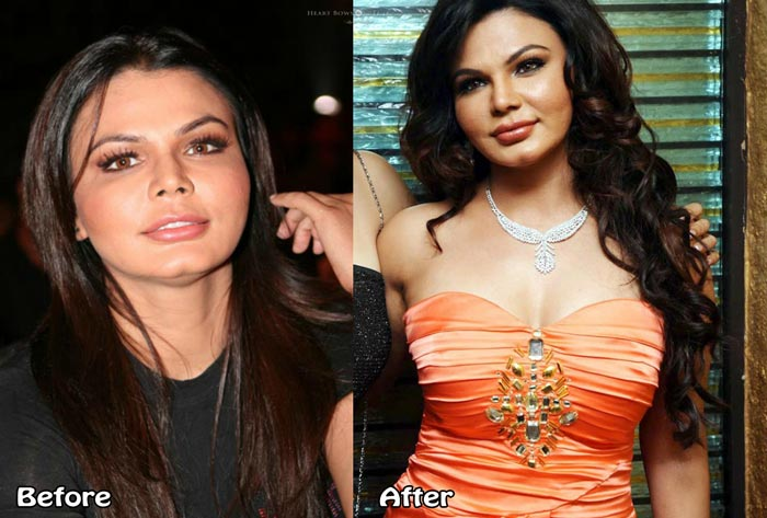 Bollywood Plastic Surgery Fails Rakhi Sawant Nose Job Boob Job Liposuction Before After