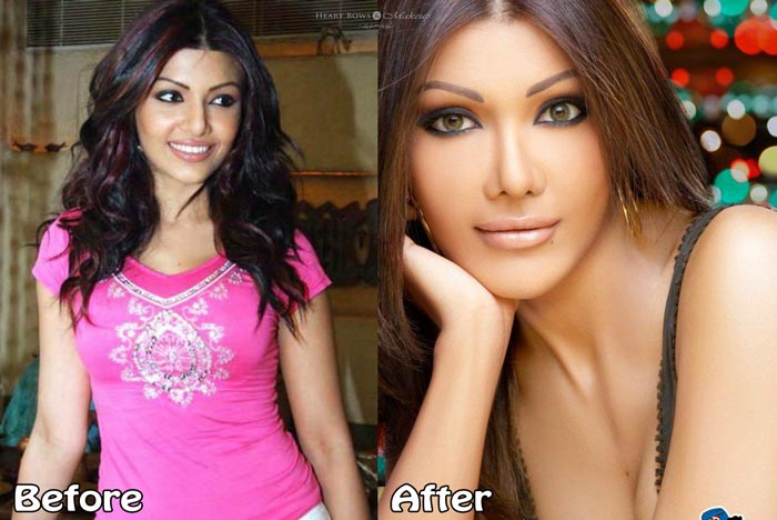 Koena Mitra Before and After Plastic Surgery Disaster Photo