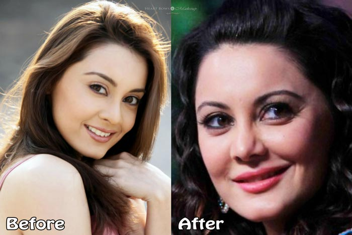 Minissha Lamba Plastic Surgery Before After Photos Nose Lip Job