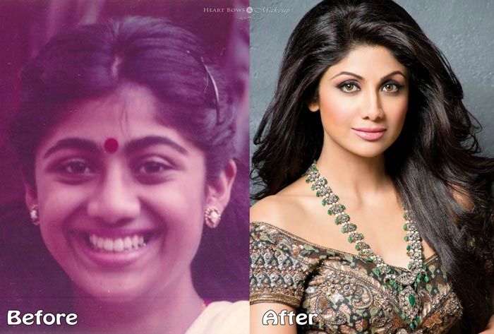 Shilpa Shetty Nose Job Before & After Plastic Surgery Pics