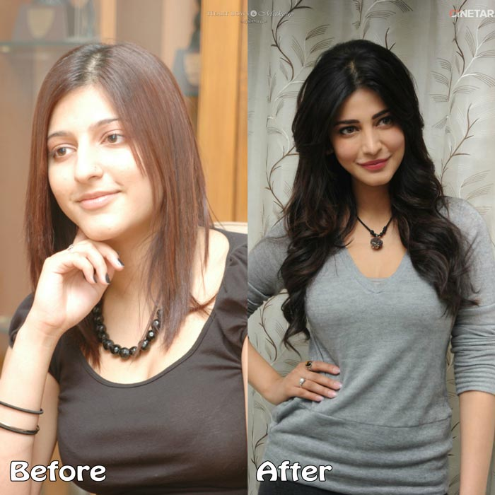 Top Bollywood Plastic Surgery Before After Shruti Hassan Nose Job Lip Botox Pictures