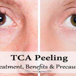 TCA Peeling: Treatment Details, Benefits, Precautions & Side Effects