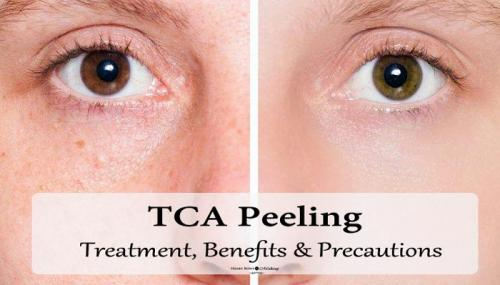 TCA Peeling: Treatment Details, Benefits, Precautions & Side Effects
