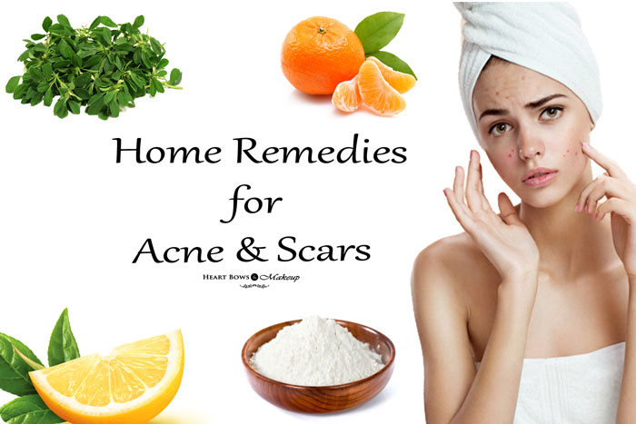 Home Remedies For Acne & Scars