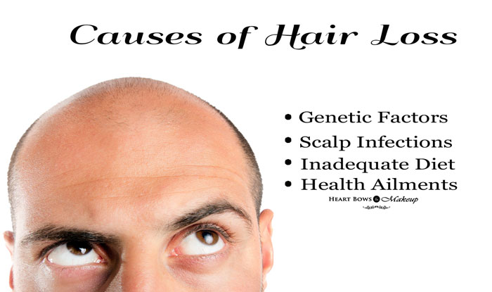 hair loss causes - eyebrow hair loss pictures | follixin - stop