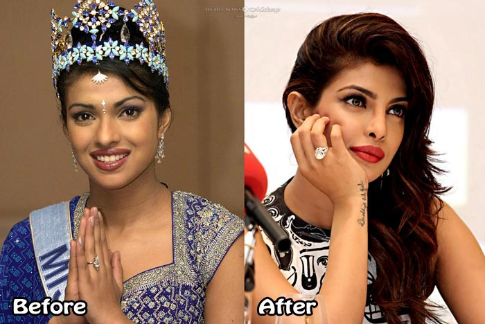 Koena mitra plastic surgery disaster celebrity