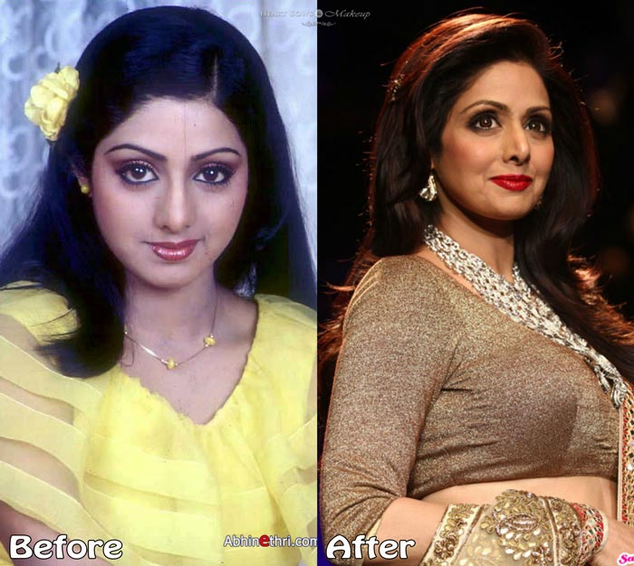 Top 10 Bollywood Plastic Surgeries Disasters Before