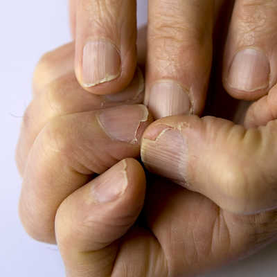 Best Home Remedies For Weak, Brittle Nails