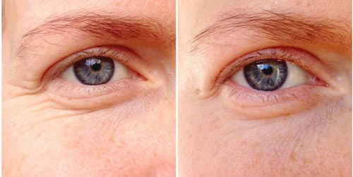 Coconut Oil For Wrinkles Under Eyes Before After Pictures